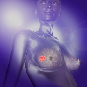 Von metastasiertem Brustkrebs