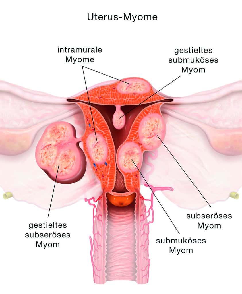 blutung beim geschlechtsverkehr hochschwanger geschlechtsverkehr