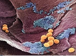 Hilfe bei Scheideninfektionen und trockener Scheide. Teil 2 Verschiedene Lebensphasen