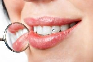 Amalgam in Zahnfüllungen schädlich?