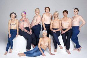 Brustkrebs-Frauen-© Karen-schultz.dk