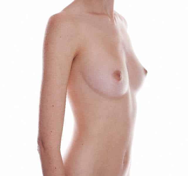 Was Sie beim Wunsch nach Brustvergrößerung wissen sollten